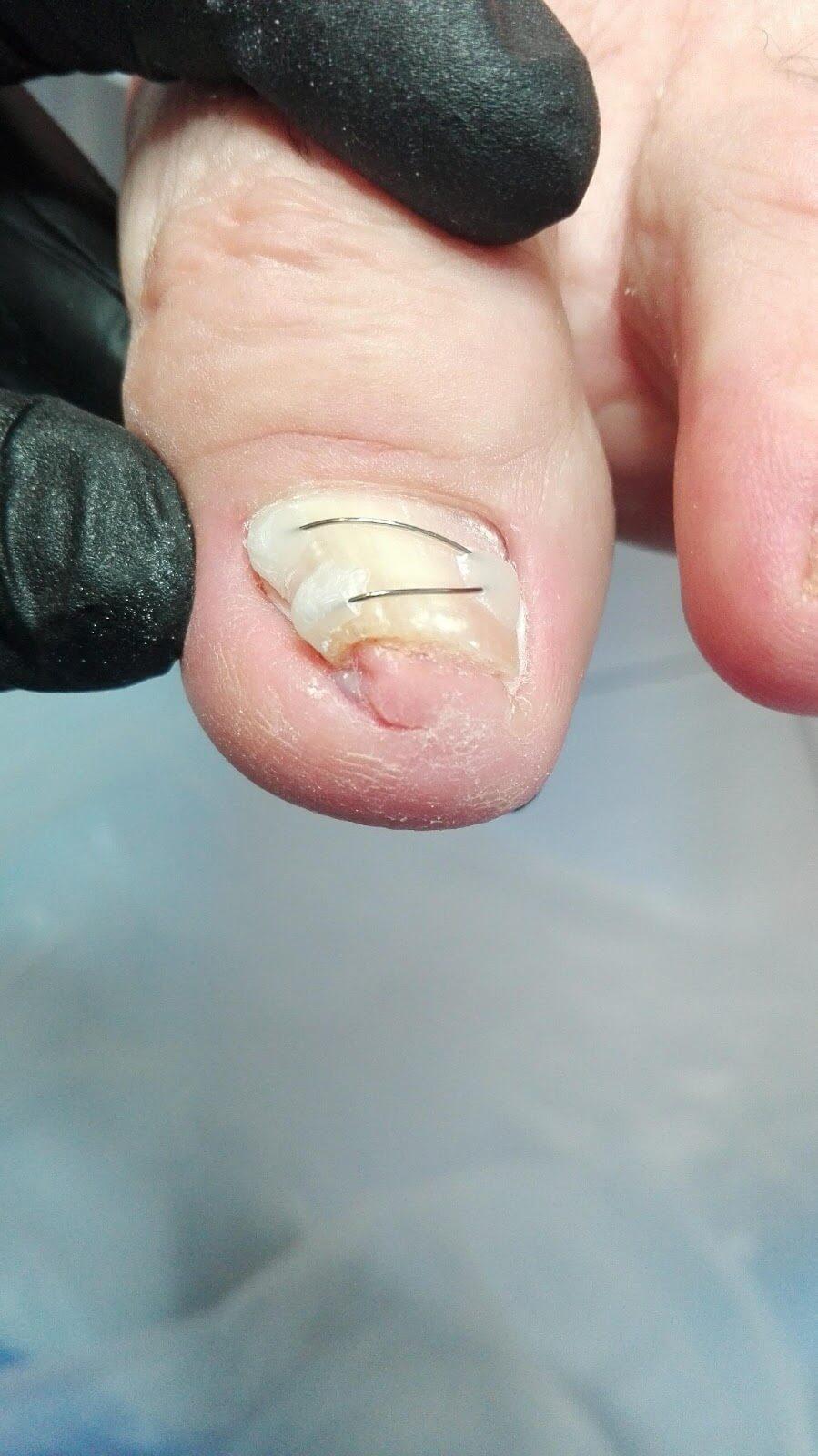 leczenie wkręcającego paznokcia