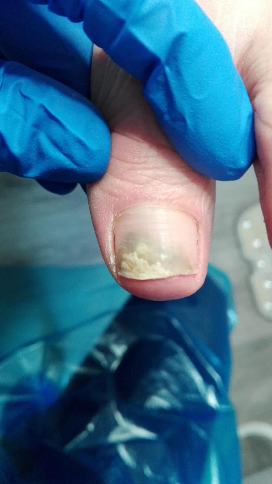 paznokieć zmieniony chorobowo