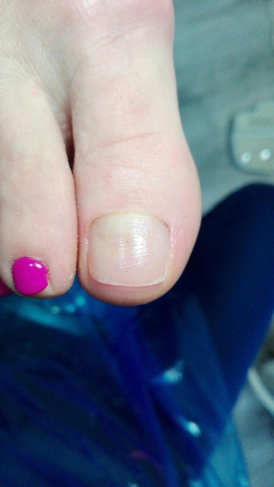 stopa po rekonstrukcji paznokcia