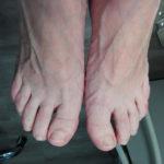 stopy przed podstawowym zabiegiem podologicznym